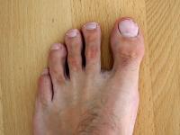 linker Fuß mit Nagelpilz 03.10.2011