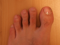 linker Fuß mit Nagelpilz 08.08.2011