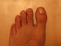 linker Fuß mit Nagelpilz 19.09.2011