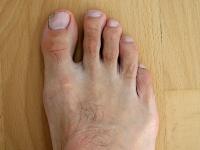 rechter Fuß mit Nagelpilz 03.10.2011