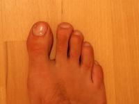 rechter Fuß mit Nagelpilz 19.09.2011