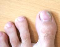 linker Fuß mit Nagelpilz am 20.07.2011