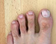linker Fuß mit Nagelpilz am 26.07.2011