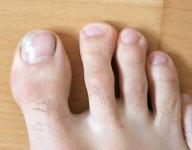 rechter Fuß mit Nagelpilz am 20.07.2011